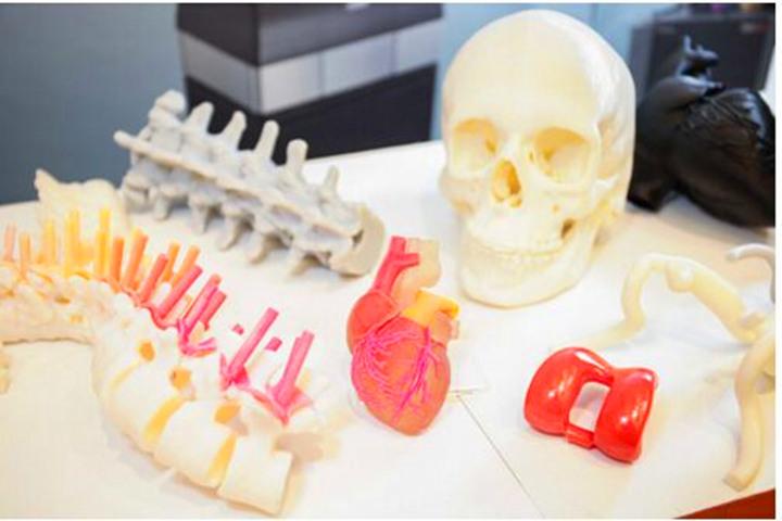 干货!3D打印术前预演模型概念和应用深度解析