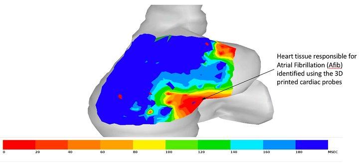 斯坦福大学的研究人员使用3D打印创建更好的心脏导管设备 - 图片