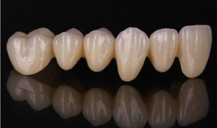 一张图和四类案例了解陶瓷3D打印技术的医疗应用 - 图片