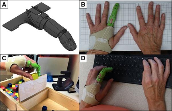 案例研究:为患者3D打印特异性部分手指假体 - 图片