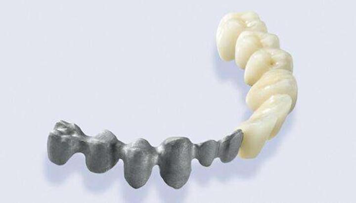 口腔医学领域3D打印材料的研究进展 - 图片