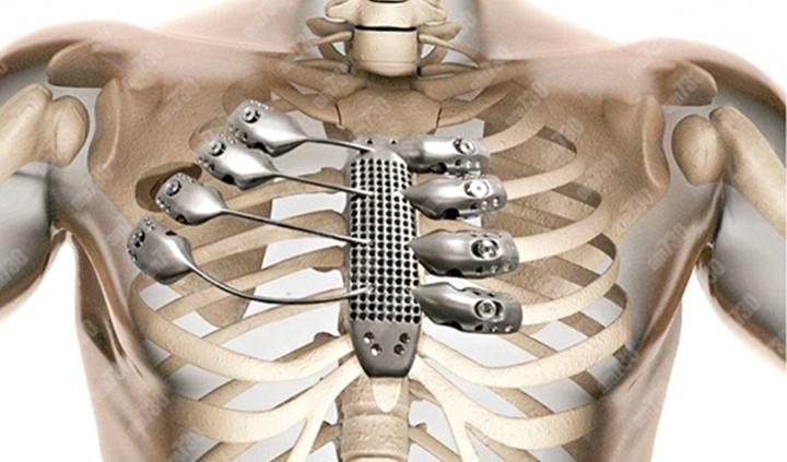 盘点目前市场上的金属医用3D打印材料