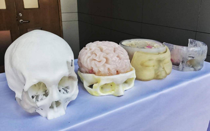 3D打印在医疗行业使用价值 - 图片