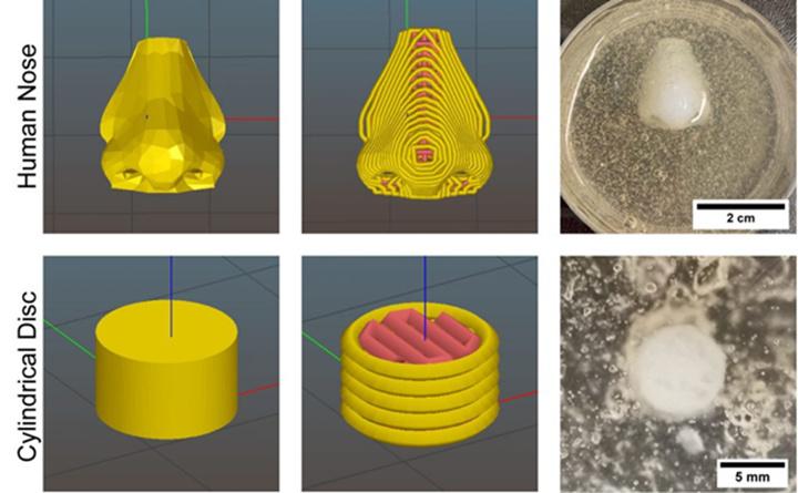 适用于癌症患者的生物3D打印定制化鼻软骨方法