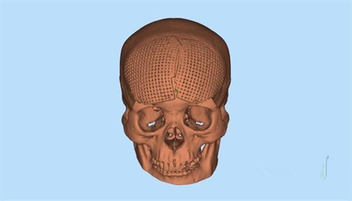 泰安市中心医院应用颅骨3D打印技术完美修复颅骨缺损