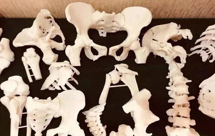 3D打印技术在骨肿瘤外科的现状与展望
